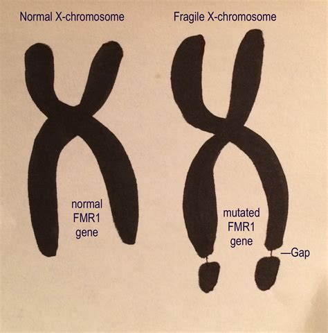 Fragile X Study Offers Hope of New Autism Treatment